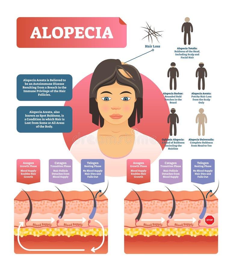Alopecia - ejemplo médico del diagrama del vector de la enfermedad autoinmune de la pérdida de pelo libre illustration
