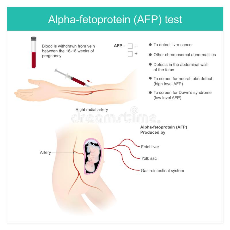 Alpha-fetoprotein AFP test. Use Analysis by AFP level. to dete. Ct liver cancer, and use to screen for down's syndrome stock illustration