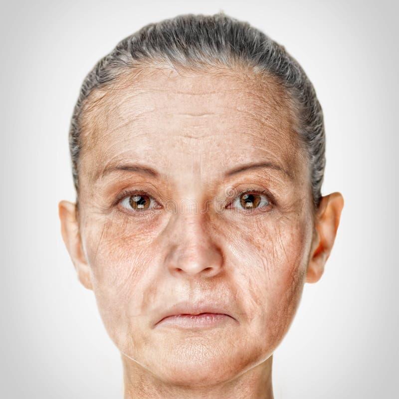 Alterungsprozess, Verfahren der Verjüngungsantialtern-Haut stockfotografie
