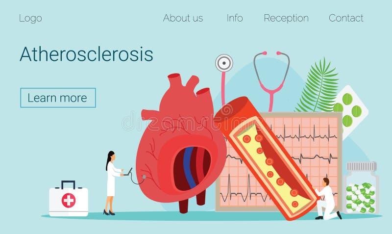 Alto - press?o sangu?nea e aterosclerose do colesterol ilustração royalty free