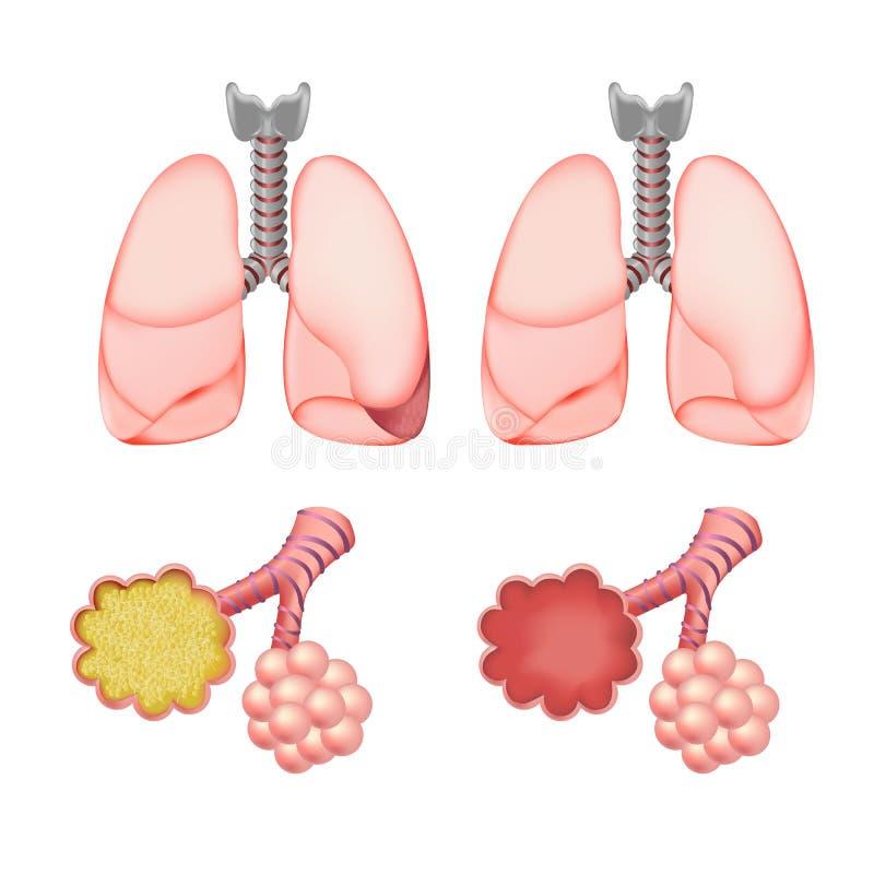 Alvéolos nos pulmões ajustados ilustração royalty free