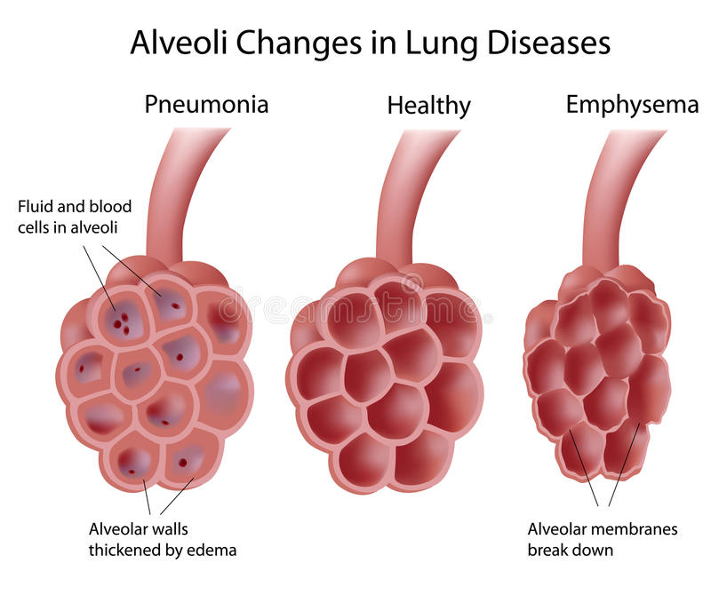 Alveoli in lung diseases royalty free illustration