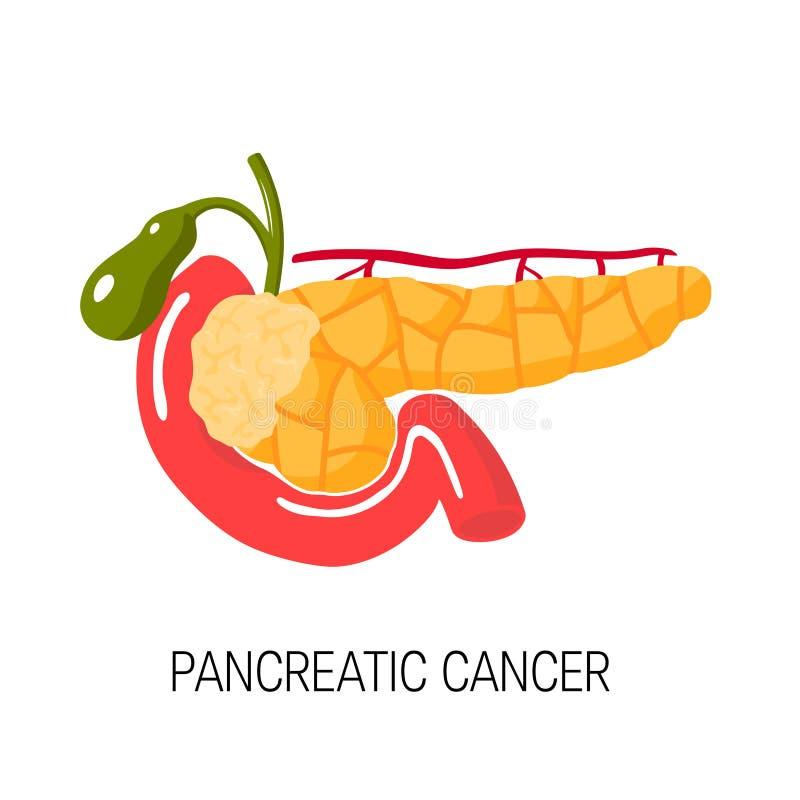 Alvleesklier- Kankerconcept Vector illustratie vector illustratie