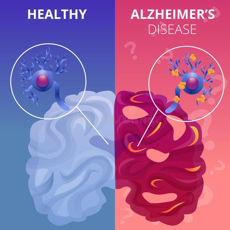 Alzheimer brain banner set, cartoon style stock illustration