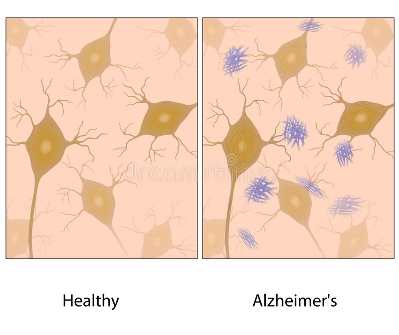 Download Alzheimer Disease Brain Tissue Stock Vector - Image: 27017484