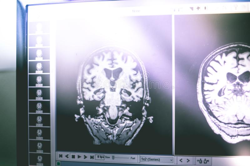 Alzheimer`s disease on film MRI hippocampus atophy royalty free stock images