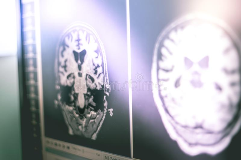Alzheimer`s disease on film MRI hippocampus atophy stock images