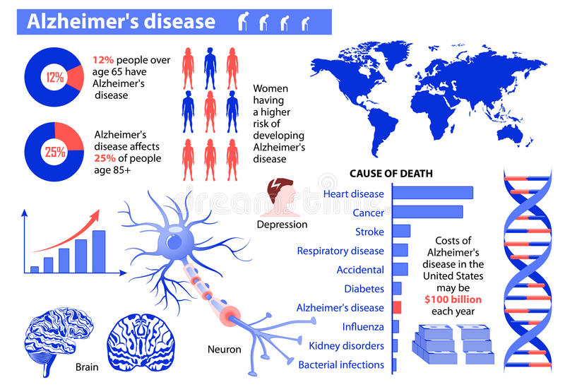 Alzheimer's disease. Medical infographic. Set elements and symbols for design royalty free illustration