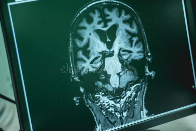 Mri Brian Of Dementia Patient Stock Photo Image Of Research