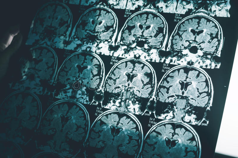 Alzheimer`s disease on MRI stock photography