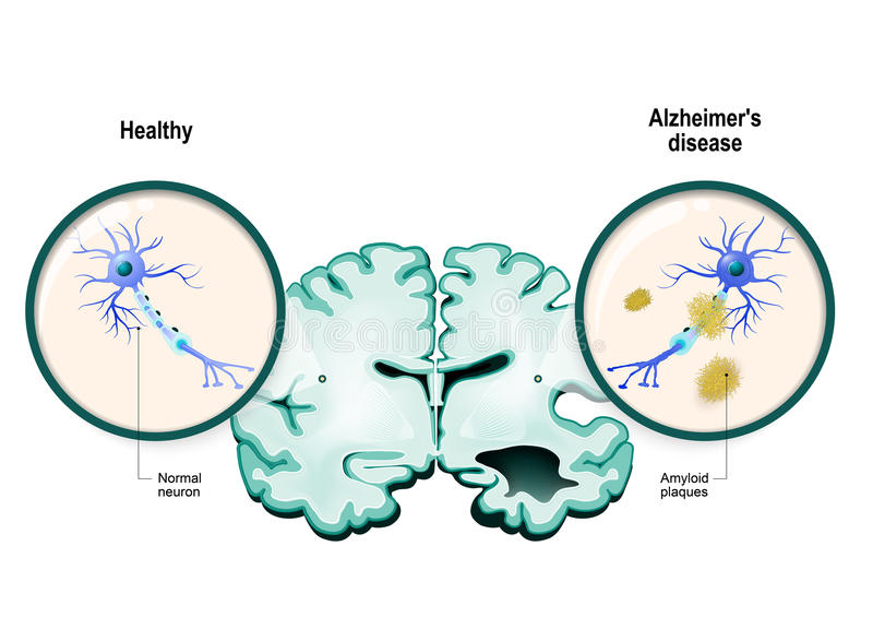 Alzheimer`s disease. Neurons and brain royalty free illustration
