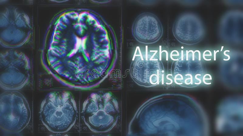 Alzheimer`s disease or Parkinson concept. Blurred MRI scan of brain with glitch effect royalty free stock photo