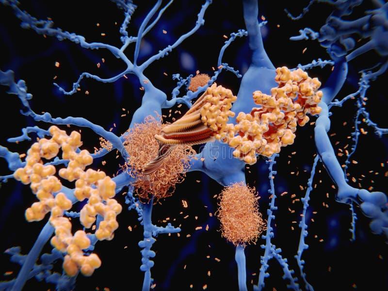 Alzheimer-` s Krankheit: das Amyloid-Betapeptid sammelt zum Amy an lizenzfreie abbildung