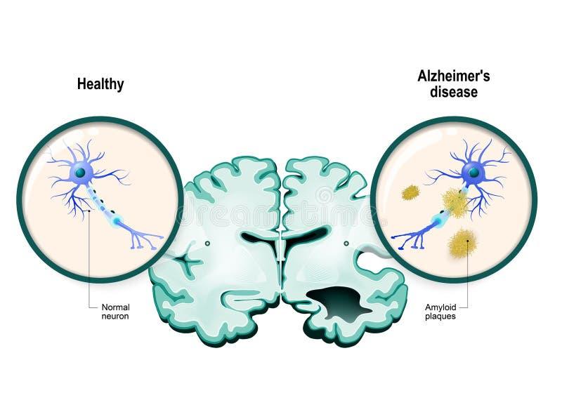 Alzheimer-` s Krankheit Neuronen und Gehirn lizenzfreie abbildung