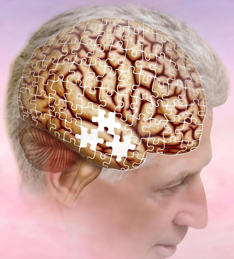 Free Alzheimer`s, The Disease Of Forgetfulness Alzheimer`s And Lost Thoughts. Stock Photos - 117738563