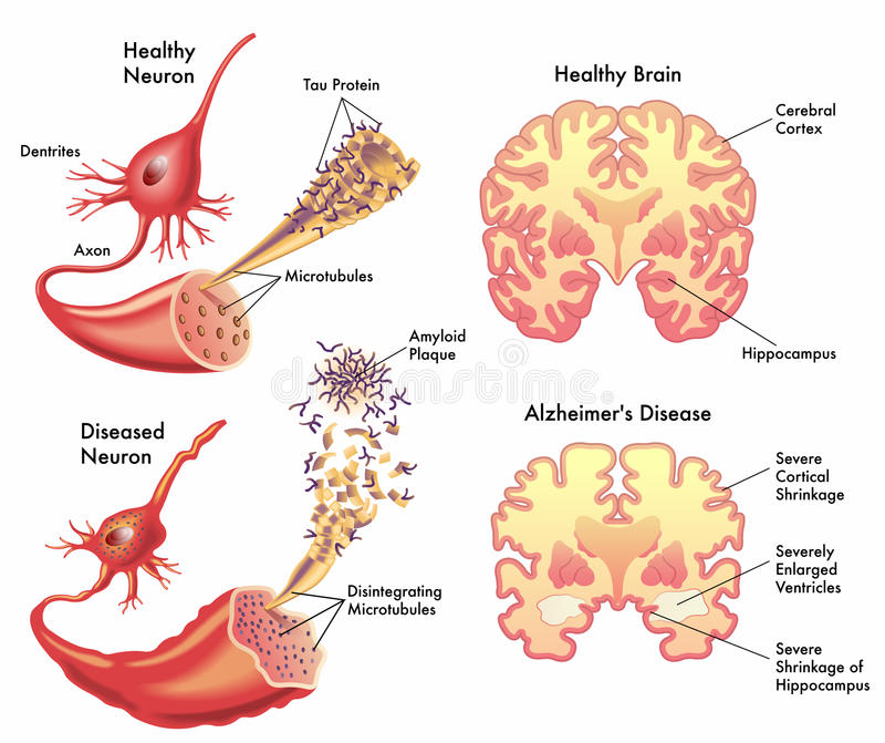 Alzheimers disease vector illustration