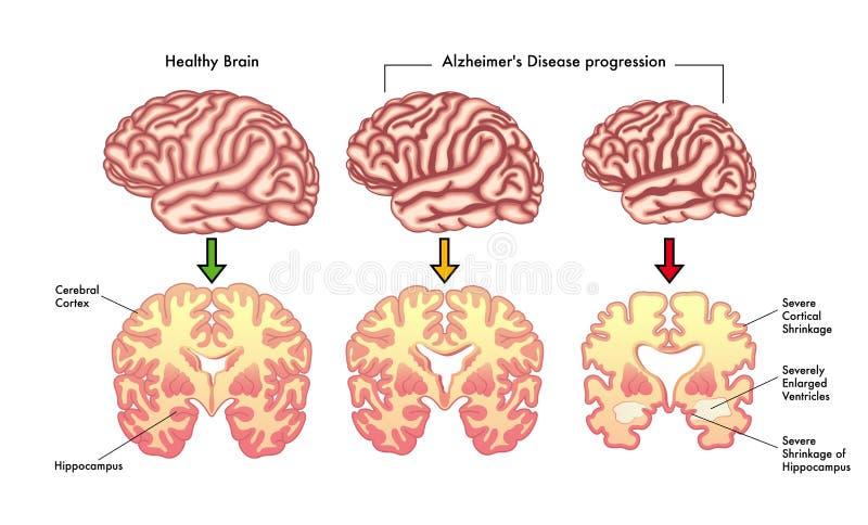 Alzheimers fortgång för sjukdom stock illustrationer