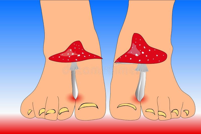 Amanita pieczarki między palec u nogi ciekami imituje palec u nogi grzybowych ilustracja wektor