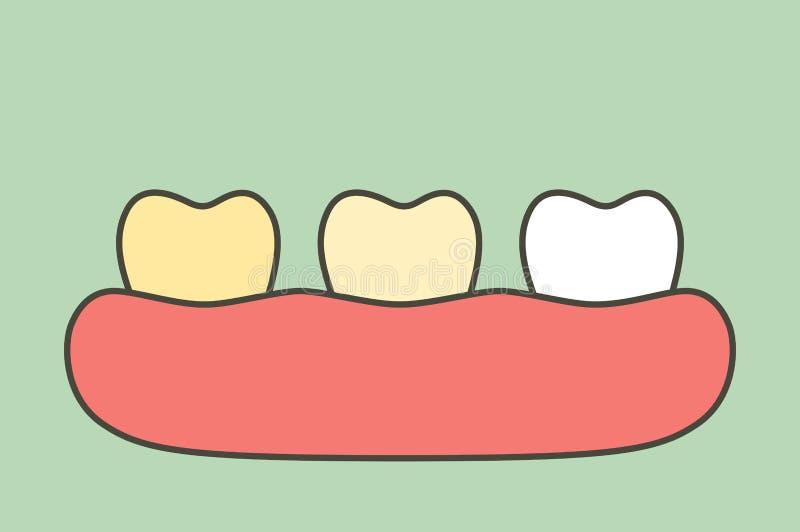 Amarele ao dente branco, dentes que claream antes e depois ilustração royalty free