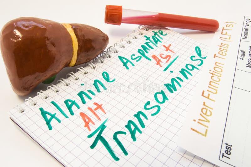 Aminotransferasas inscritas de la alanina ALT y del aspartato AST, rodeadas por el hígado, los tubos de ensayo del laboratorio co foto de archivo