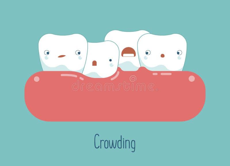 Ammucchiatura dei denti, concetto dentario illustrazione di stock