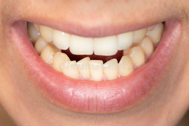 Ammucchiatura dei denti della mandibola più bassa di giovane uomo caucasico immagini stock