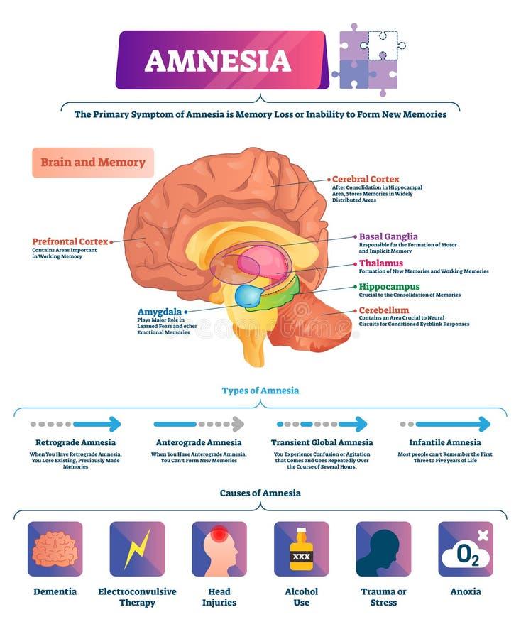 Amnesia vector illustration. Labeled brain memory loss disease types scheme royalty free illustration