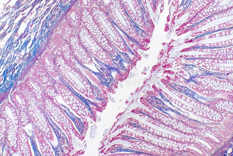 Amostra 1 do plexo de Auerbach imagens de stock