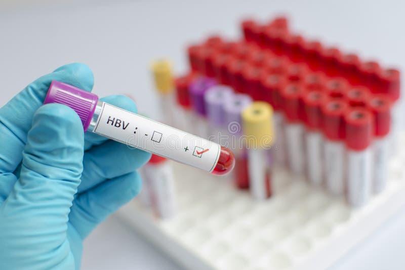 Amostra de sangue do vírus da hepatite B (HBV) imagem de stock