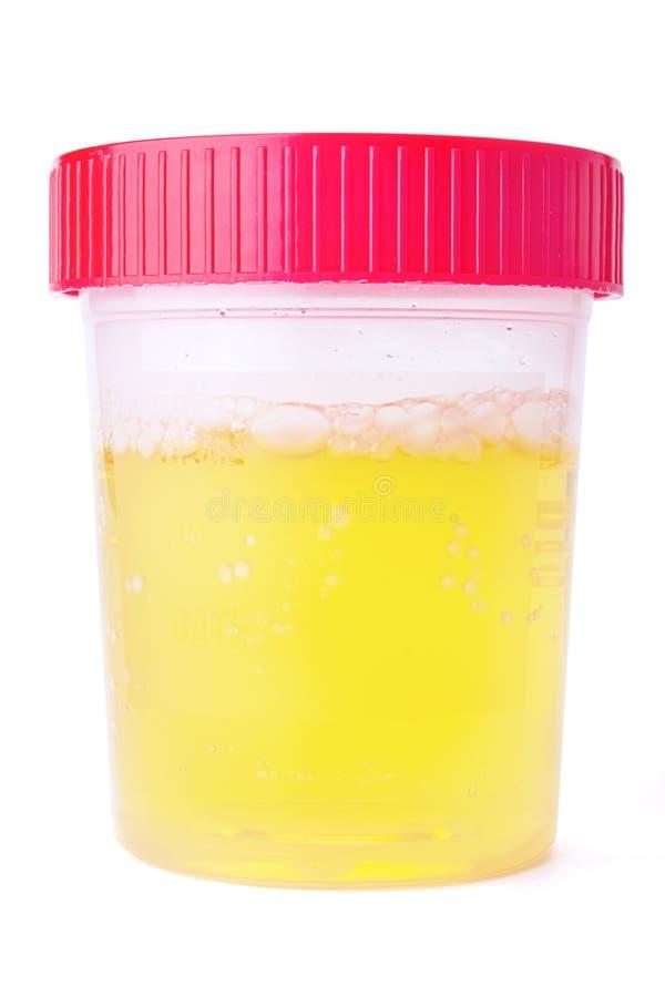 Amostra de urina imagem de stock royalty free