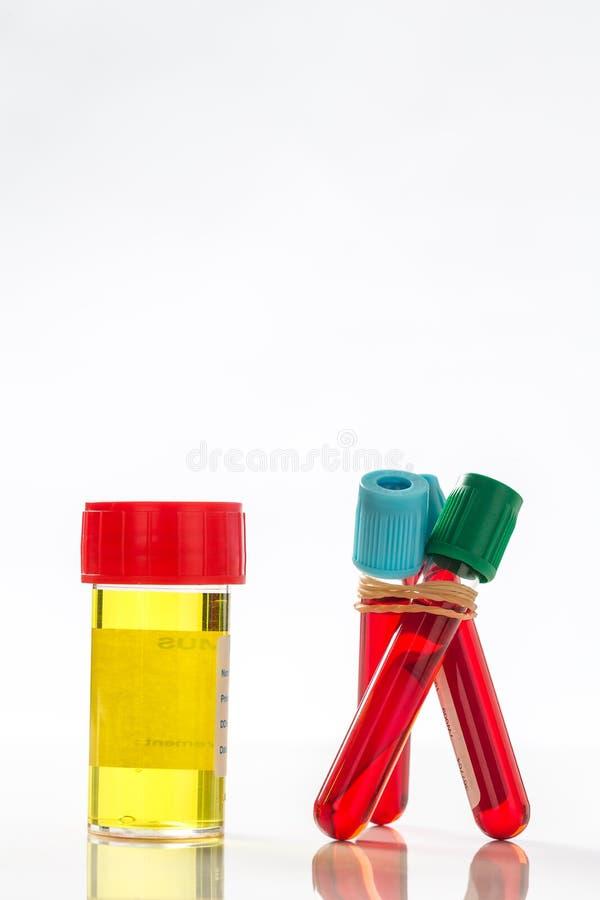 Download Amostra E Análise De Sangue De Urina Imagem de Stock - Imagem de sangue, chemistry: 65577005