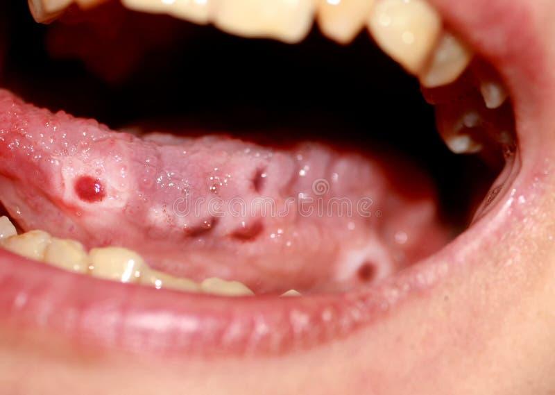 Amphotoid口腔炎 舌头的念珠菌病 在舌头的溃疡 假丝酵母真菌 免版税库存图片