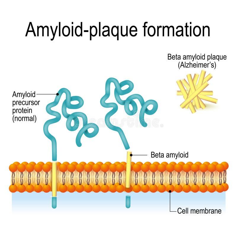 Amyloid-plaque vorming De ziekte van Alzheimer ` s stock illustratie