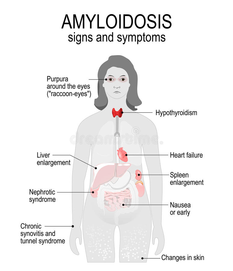 Amyloidosis. Signs And Symptoms. Stock Vector - Illustration of ...