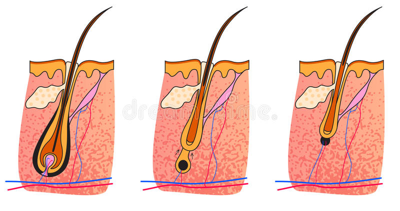 Anagen catagen telogen. Anatomy skin Hair Cycles of hair follicle