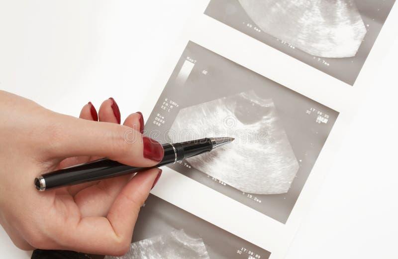 Analisi di ultrasuono immagine stock libera da diritti