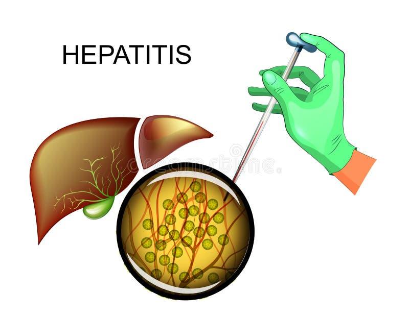 Analys för hepatit C och leversjukdom vektor illustrationer
