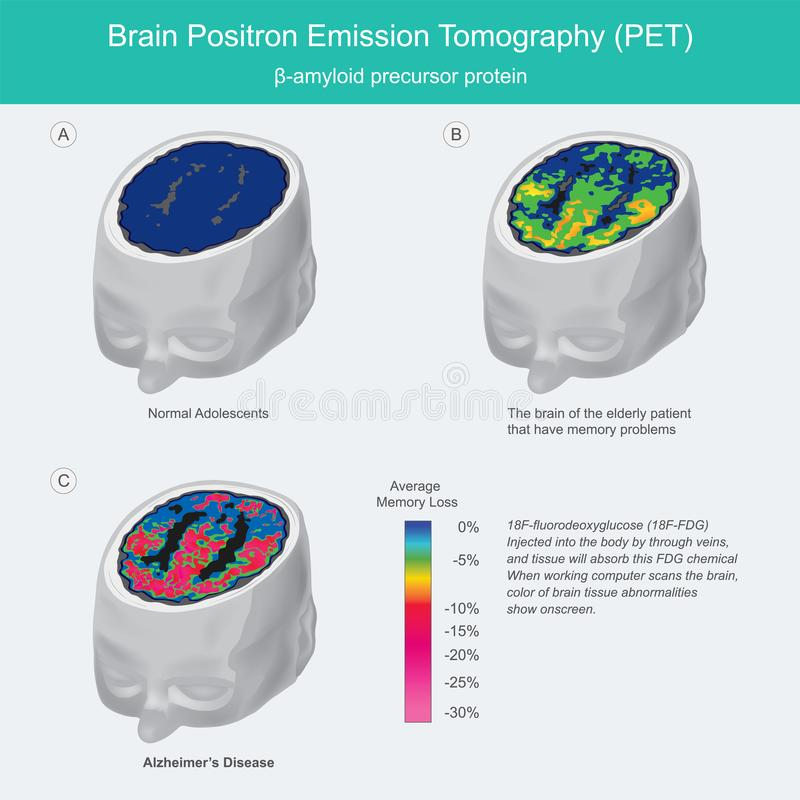 Analyses PET du cerveau illustration stock