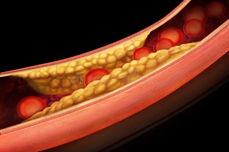 Anatomía de la ateroesclerosis en arteria ilustración del vector
