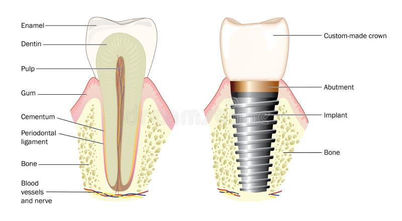 Anatomía de un diente y de un implante dental stock de ilustración