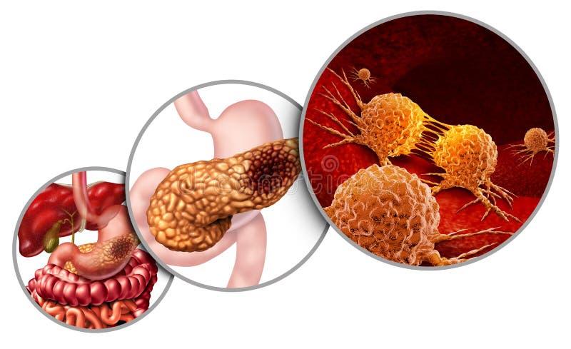 Anatomía del cáncer del páncreas ilustración del vector