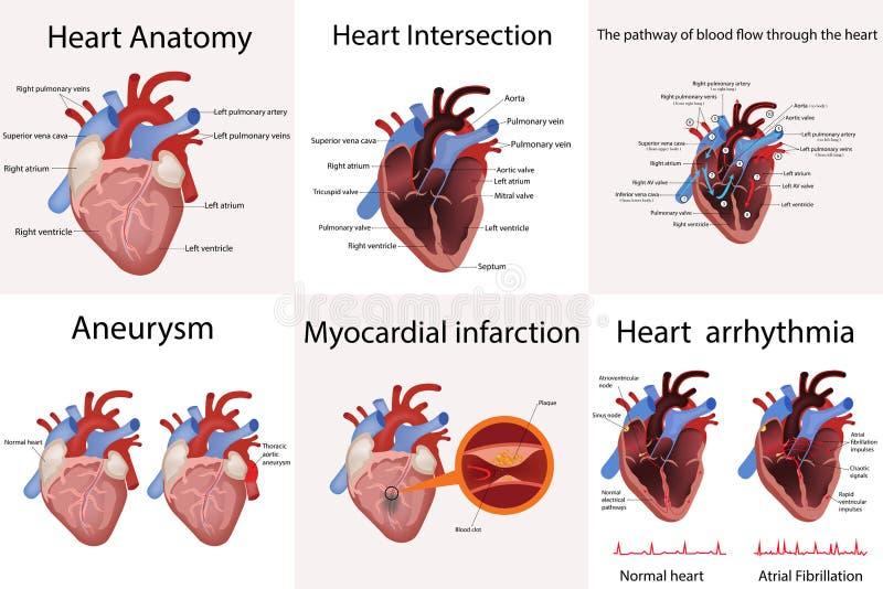 Anatomía del corazón y tipos de ejemplo del vector de la enfermedad cardíaca ilustración del vector