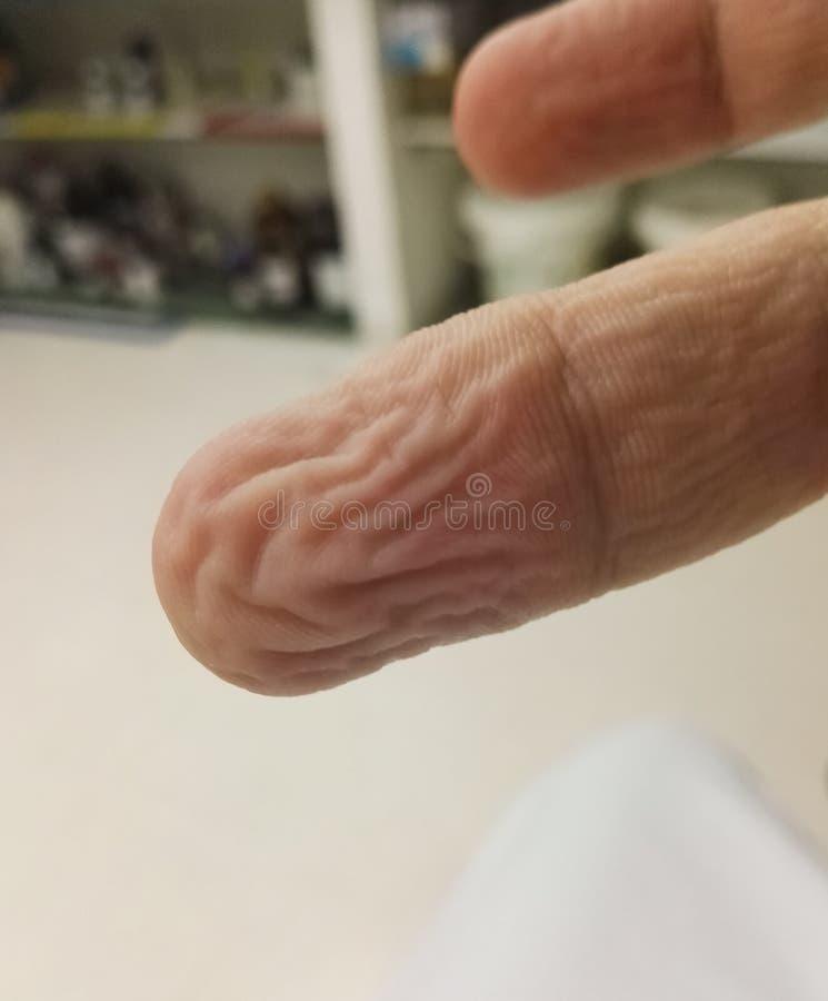 Anatomía Del Cuerpo: Finger Arrugado Por El Agua Con El Detalle De ...