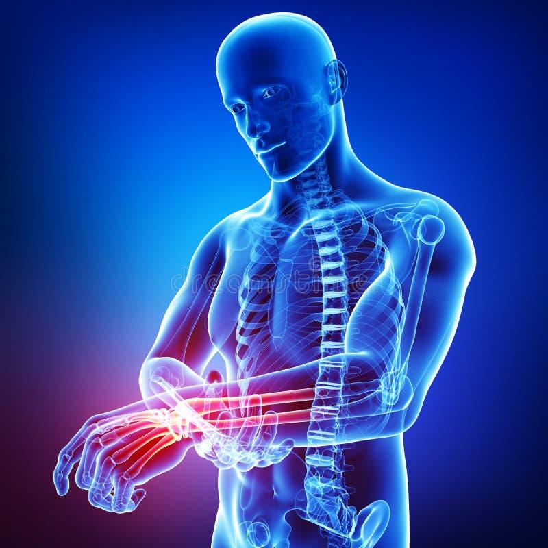 Anatomía del dolor masculino de la mano stock de ilustración