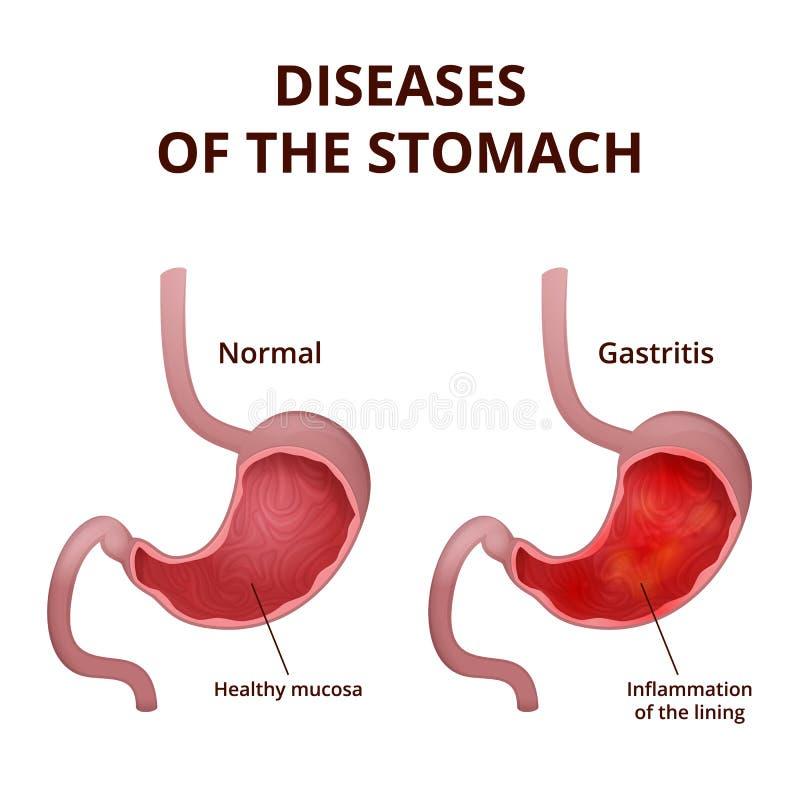 Anatomía Del Estómago Humano Ilustración del Vector - Ilustración de ...