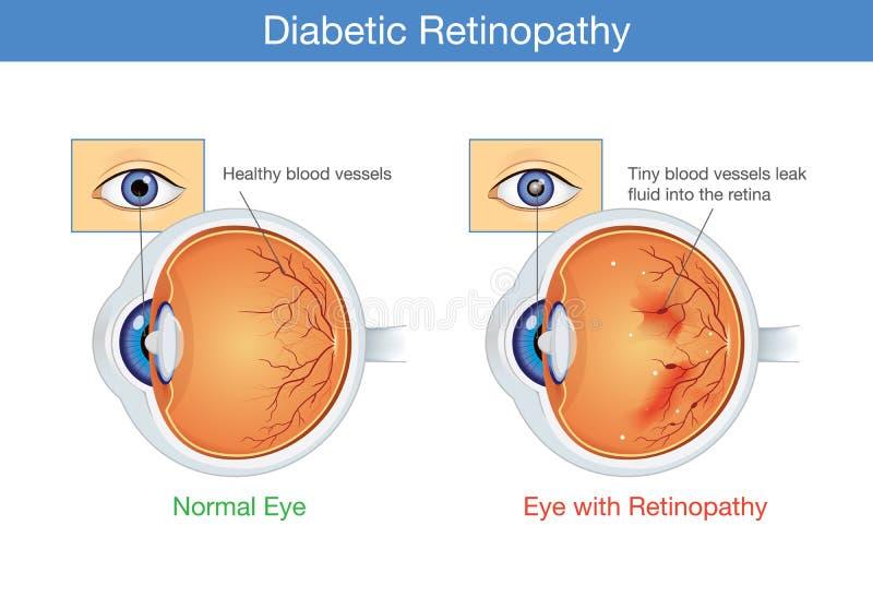 Anatomía del ojo normal y de la retinopatía diabética stock de ilustración