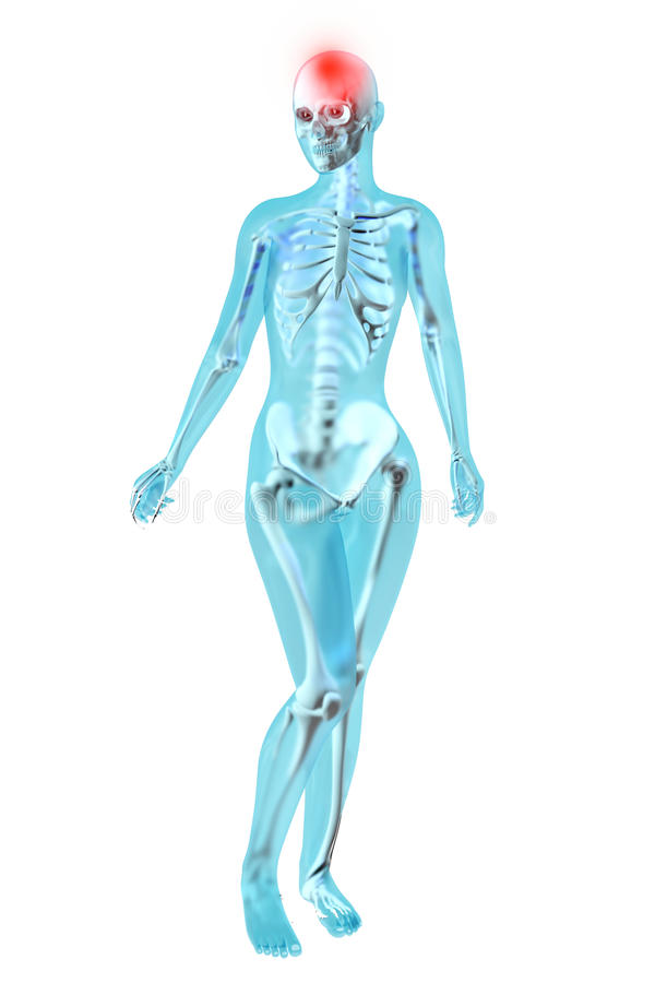 Anatomía Femenina - Dolor De Cabeza Stock de ilustración ...