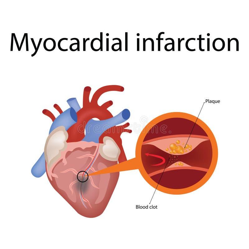 Anatom?a del coraz?n y tipos de ejemplo del vector de la enfermedad card?aca ilustración del vector