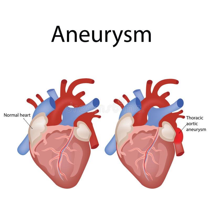 Anatom?a del coraz?n y tipos de ejemplo del vector de la enfermedad card?aca stock de ilustración