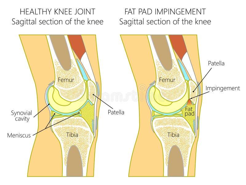 Anatomi av hyperextensionen för knee_Fatblockimpingement tack vare vektor illustrationer